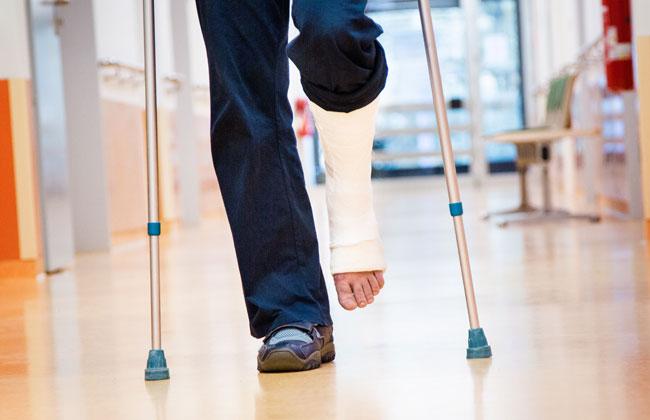Lockerung Der Krankenstände Mit Gebrochenem Bein Ins Büro Kosmo