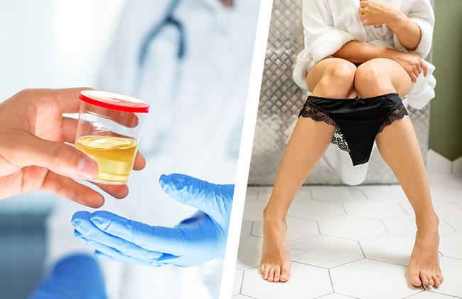 urin-test