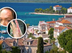Kroatien-Bettwanzen-Zadar-Touristin-Urlaub